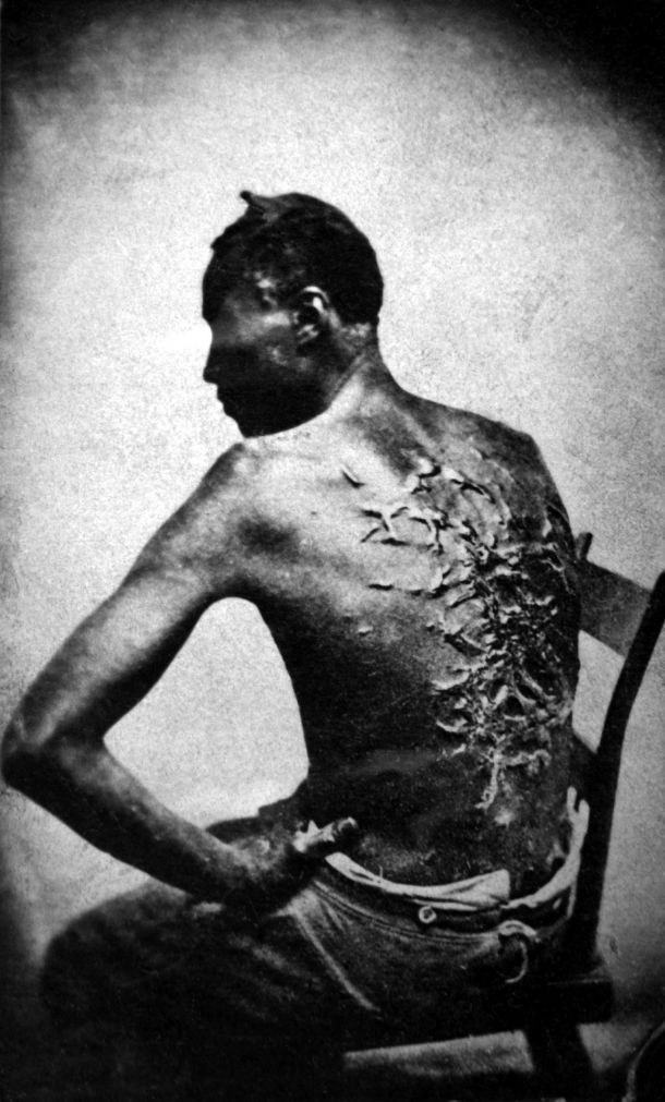 Scars of a whipped Mississippi slave, photo taken (April 2, 1863, Baton Rouge, Louisiana, USA. Original caption: Overseer Artayou Carrier whipped me. I was two months in bed sore from the whipping. My master come after I was whipped; he discharged the overseer. The very words of poor Peter, taken as he sat for his picture.